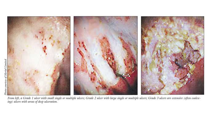Thumbnail for Gastric Ulcers