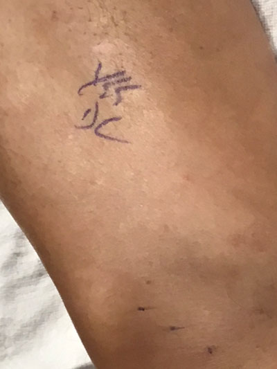 Doc's initials on Leslie's left knee.